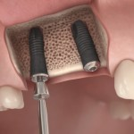Implant Surgical 8